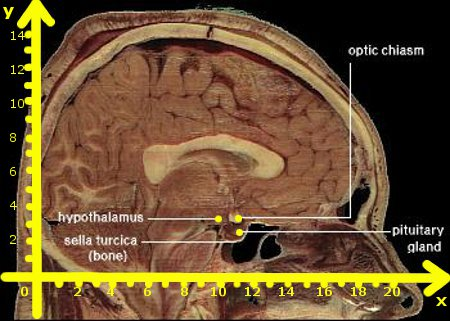 Scan of a slice of human brain